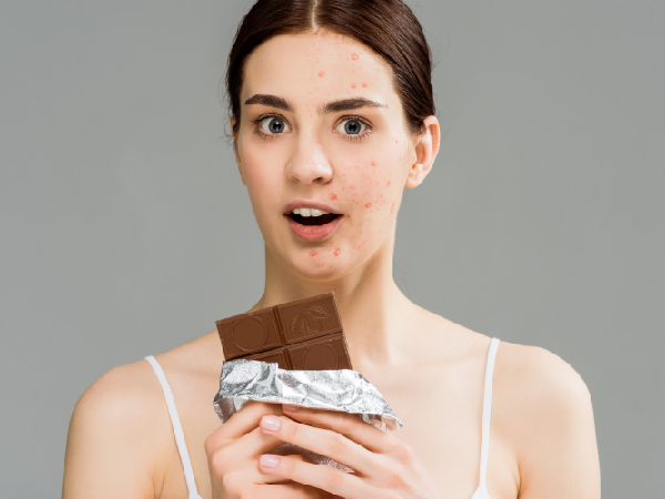 Acné… ¿lo causa mi alimentación?